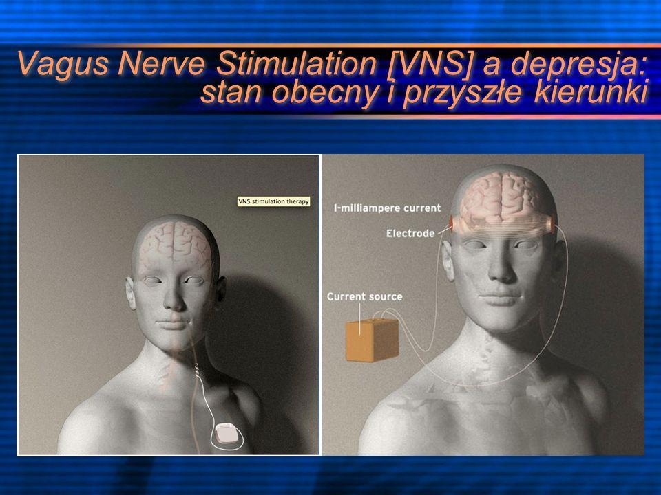 Vagus Nerve Stimulation [VNS] a depresja: stan obecny i przyszłe kierunki
